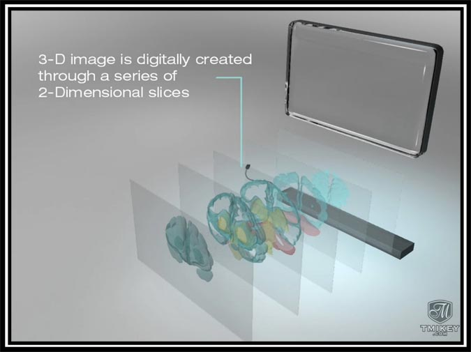 3DTV Expansion Diagram